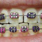 public-aid-braces-in-illinois-orthodontist